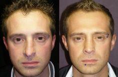 """Rinoplastica - Le linee estetiche del dorso sono migliorate. Dorso e punta sono stati ristrutturati con nuove osteotomie ed innesti plurimi, compreso innesto di fascia temporale. Il dorso è stato appena allargato per consentire, con innesti """"spreader"""", il ripristino funzionale delle valvole nasali interne."""