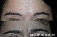 Dr Robin Mookherjee - Cliché avant - Dr Robin Mookherjee