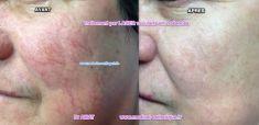 Traitements laser - dermatologie esthétique - Cliché avant - Dr AMAT - ????Greffe FUE 2.0 Medic Xpert