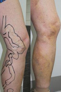 Varicose veins treatment - Photo before - ARS ESTETICA – Klinika Medycyny Estetycznej i Laseroterapii