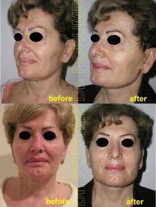 Facelift - Photo before - Dr. Serban Porumb