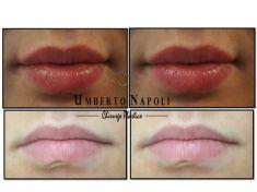 Aumento labbra - aumento della labbra con filler Allergan Volbella