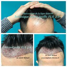 Greffe de cheveux - Micro greffe capillaire FUE 2.0 new dense, sans cicatrice et sans douleur. implants-cheveux.fr