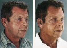 Dr. Gabriel A. Peralta - Foto Antes de - Dr. Gabriel A. Peralta