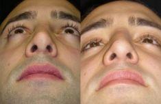 Dott. Enrico Robotti - Si è reimpiegata la stessa cicatrice di accesso attraverso la columella, migliorandone l'aspetto