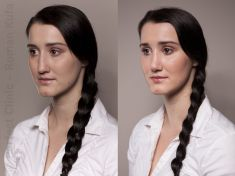 Rhinoplasty (Nose Job) - Photo before - MUDr. Roman Kufa - Perfect Clinic