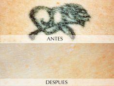 Eliminacion de tatuajes - Foto Antes de - Clínica Planas