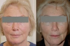 Facelift - Photo before - Dr Jacques Buis