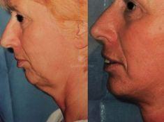 Profiloplastica (Rinoplastica e Mentoplastica) - Foto del prima - Dott. Fioravante Orefice