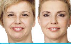 Sculptra - Wykonano nieoperacyjny lifting twarzy z wykorzystaniem kwasu polimlekowego (Sculptra) oraz innych metod. Sculptrę zastosowano do korekcji okolicy skroni, policzków oraz do poprawy symetrii dolnej części twarzy.