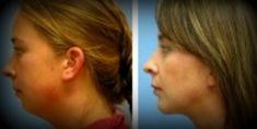 Liposukcja ultradźwiękowa (VASER Lipo®, LipoSelection®) - Zdjęcie przed