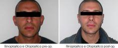Rinoplastica - Foto del prima - Dott. Alberto Peroni Ranchet Esperto per la Chirugia Estetica del Consiglio Superiore della Sanità