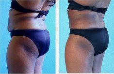 Liposukcja (odsysanie tłuszczu) - Zdjęcie przed - Mandala Beauty Clinic