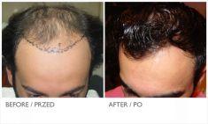 Przeszczep włosów - transplatacja włosów - Zdjęcie przed - Mandala Beauty Clinic