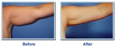Liposuction - Photo before - Dr Alexander Bader MD, FAACS, FAAOCG, FISCG