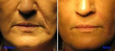 Dermal fillers - Photo before - Azim Jahangir Khan M.D.