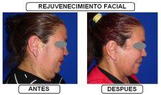 Dr. Andres Miguel Ortegon Pulido - Foto Antes de - Dr. Andres Miguel Ortegon Pulido