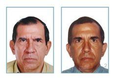 Lifting facial - Foto Antes de - Dr. Julio César Escobar Fonseca