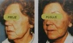 Facelift - Photo before - Duško Maletić Dr.med.