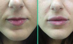 Aumento labbra - Foto del prima - Dott.ssa Moio Mariagrazia