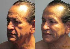 Rellenos de ácido hialurónico - Foto Antes de - Dr. Boris Henríquez González
