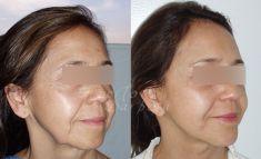 Tratamientos esteticos con laser - Foto Antes de