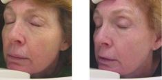 Radiofrequency Rejuvenation (Aluma, accent, TriPollar, Spa RF device, Re-Age) - Photo before - Klinika Laser Esthetic