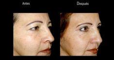 Rejuvenecimiento facial sin cirugia (Radiofrecuencia estética) - Foto Antes de