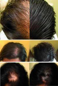 Trapianto capelli - Foto del prima - Prof. Michele Roberto