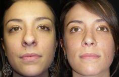 """Rinoplastica - La punta quadrata è stata corretta e """"triangolarizzata"""". La cicatrice di accesso alla columella è minimamente visibile. Poco visibili sono anche le due cicatrici alla base delle ali nasali dove è stato necessario restringere le narici."""