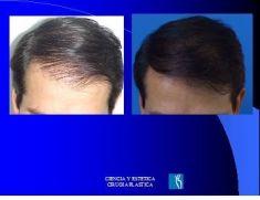 Implante capilar - Foto Antes de - Dr. Luis Pavajeau Muñoz