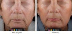 Fractional Laser Resurfacing - Photo before - Laserová dermatologická klinika ALTOS