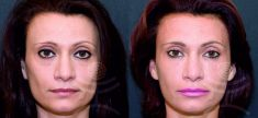 Hyaluronic acid-based wrinkle fillers - Photo before - Mediestetik, skupina klinik