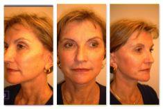 Facelift - Photo before - Dr Laurent Benadiba M.D