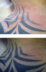 Laserové odstránenie tetovania a pigmentácií - Fotka pred - MUDr. Ružena Sochorová CSc.