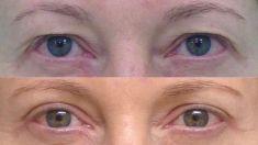 Operace horních víček - fotka před - prim. MUDr. Aleš Fibír Ph.D.