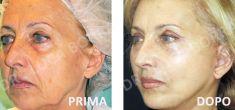 Lifting viso - Foto del prima - Dr. med. spec. FMH Luca Borra