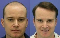 Wellness Kliniek Belgium - Implanter des cheveux: transplants capillaires: 4000 greffons selon la méthode microchirurgicale. Pas de cicatrices: la technique rend la procédure quasi invisible aux autres.