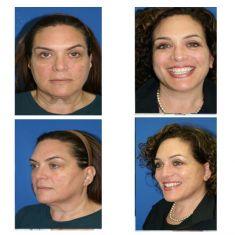 Facelift - Photo before - M.D., F.A.C.S. Bernard A. Shuster