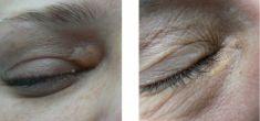 ConsensusMED Instytut Piękna dr Jasiewicz - Consensus med - efekt usunięcia zmiany skórnej laserem chirurgicznym CO2
