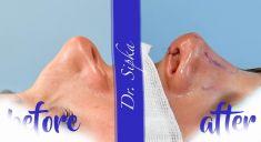 Operácia nosa (Rhinoplastika) - Znesenie hrbu a úprava špičky, otvorenou a najúčinnejšou technikou.
