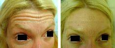 Botox/Dysport - Eliminar arrugas - Foto Antes de - Dr. Andres Freschi