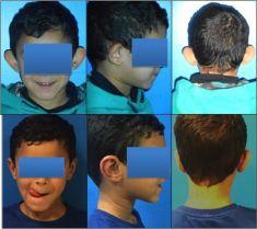 Ear surgery (Otoplasty) - Photo before - Dr Alexandre Mertens