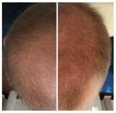 Klinika Mikro Hair - Zdjęcie przed - Klinika Mikro Hair