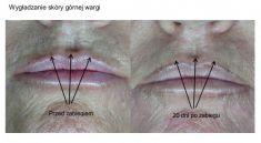 Laserowe zabiegi dermatologii estetycznej - Zdjęcie przed - FORMMED Es Chirurgia plastyczna i medycyna estetyczna