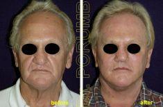 Lifting facial - Fotografie înainte de procedură