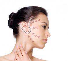 Facelift, Lifting twarzy (podciąganie powłok twarzy) - Zdjęcie przed - HORIZON MEDICAL CENTER Klinika Medycyny Regeneracyjnej