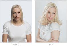 Klinika YES VISAGE - klinika estetické medicíny a plastické chirurgie - fotka před - Klinika YES VISAGE - klinika estetické medicíny a plastické chirurgie