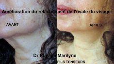 Lifting non chirurgical - Traitement liftant du bas du visage par fils tenseurs, résultats (photos après ) à 1 an.