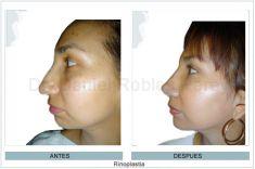 Cirugía de la nariz (Rinoplastia) - Foto Antes de - Dr. Daniel Robles Pereyra